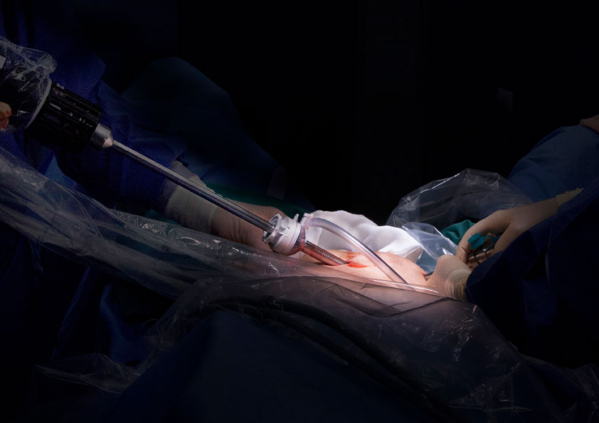prostatectomy with laser