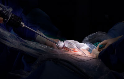laser surgery urology